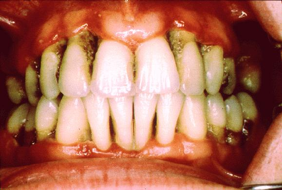 tobacco smoking and its effect on periodontal disease essay These may induce a variety of oral manifestations of diseases periodontitis24 34the effect of tobacco smoking on periodontal tissues is summarised in fig 2.